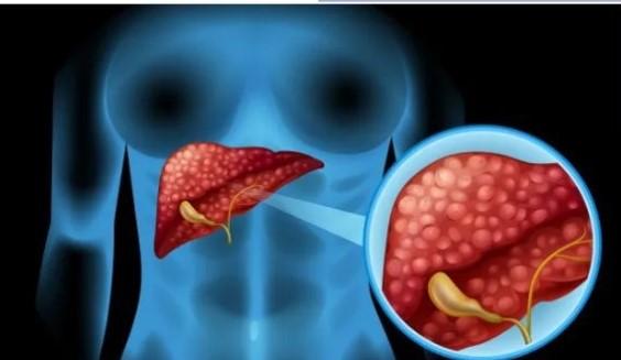 """怎样自然提高""""谷胱甘肽""""这一身体中强大的抗氧化剂水平?"""